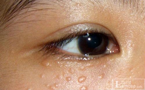 Khám Phá Những Cách Trị Mụn Thịt Quanh Mắt Hiệu Quả