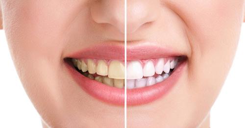 Image result for Cách làm trắng răng tại nhà nhanh chóng với nguyên liệu tự nhiên